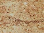 Chiampo Perlato Stone Countertops Color Search